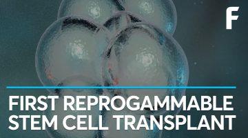 A New Technique Transforms Human Skin into Brain Cells